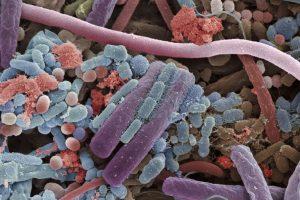 Perbedaan Antara Bakteri dan Virus