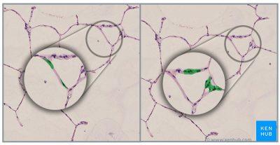 Jenis sel alveoli